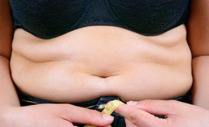 En quoi consiste l'abdominoplastie ?